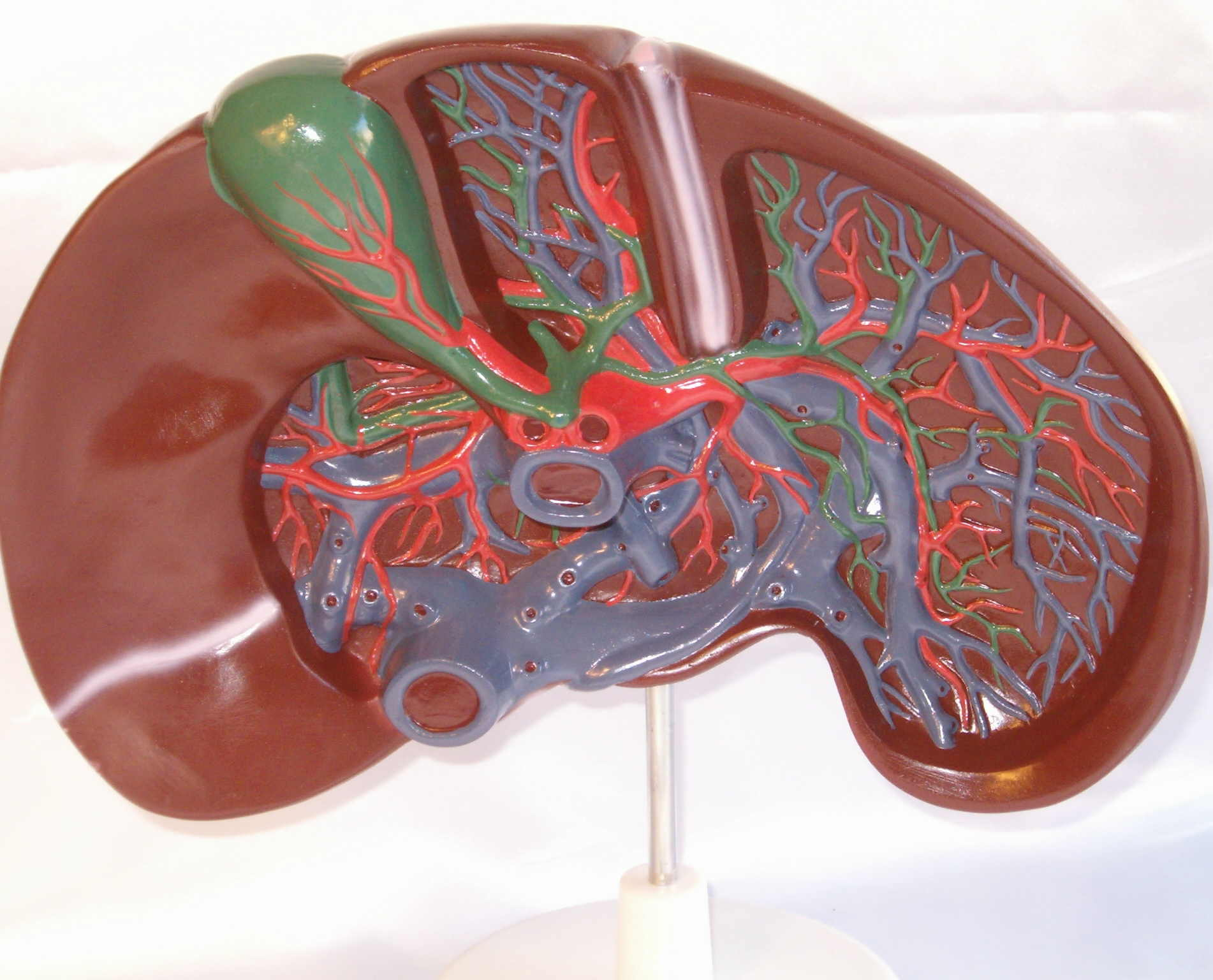 cirrhosis of the liver with portal hypertension